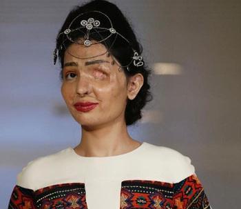 Donne senza volto, vittime dell'acido: Reshma Quereshi