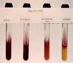 Ricerche sul DNA e Salmonella enterica e Aztechi