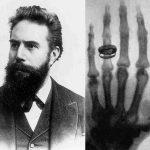 Come avvenne la scoperta dei raggi X