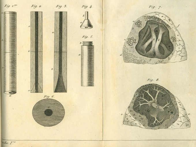 Disegno primo stetoscopio